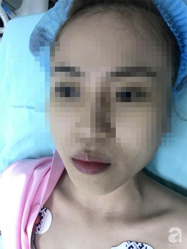 Cô gái 22 tuổi ở Bạc Liêu bị hủy hoại dung nhan vì đi nâng mũi bằng chỉ