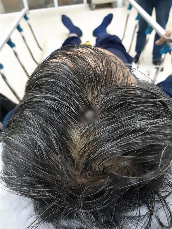 Báo Anh đưa tin bệnh nhân Việt không chịu đi khám dù đinh 8 cm xuyên vào đầu - Ảnh 1.