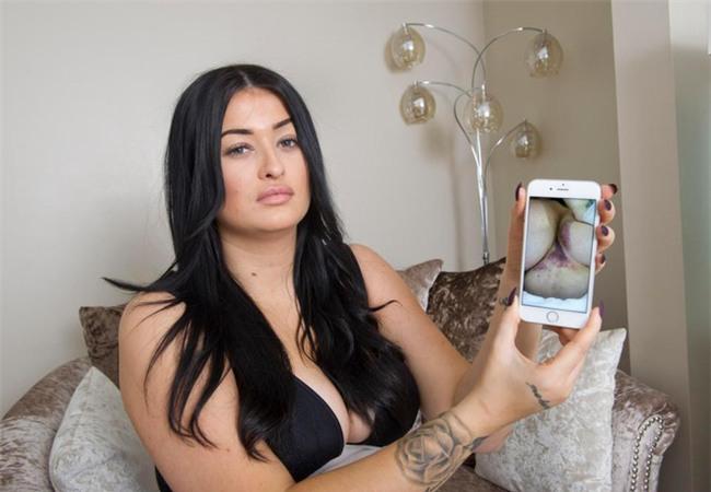 Chi gần 100 triệu đồng để nâng cấp vòng 3 cho giống thần tượng Kim Kardashian, người phụ nữ xuýt chết trên bàn mổ mà không hay biết - Ảnh 4.