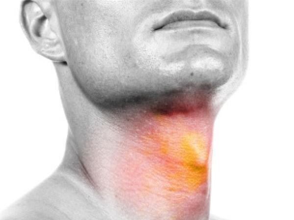 Ung thư vòm họng phát hiện sớm, cơ hội sống sót lên tới 72%-3