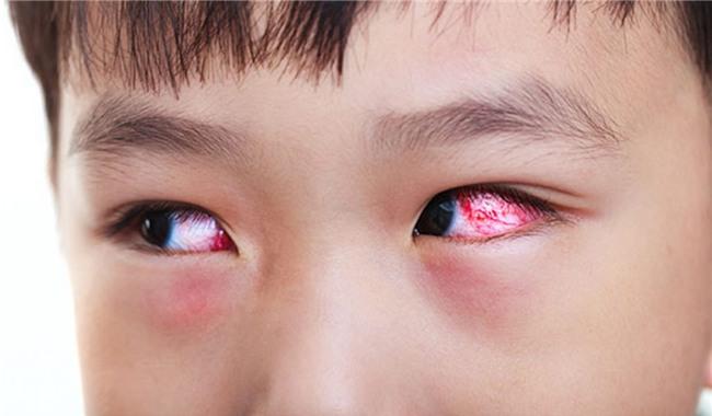 Những bài thuốc y học cổ truyền chữa đau mắt đỏ-1