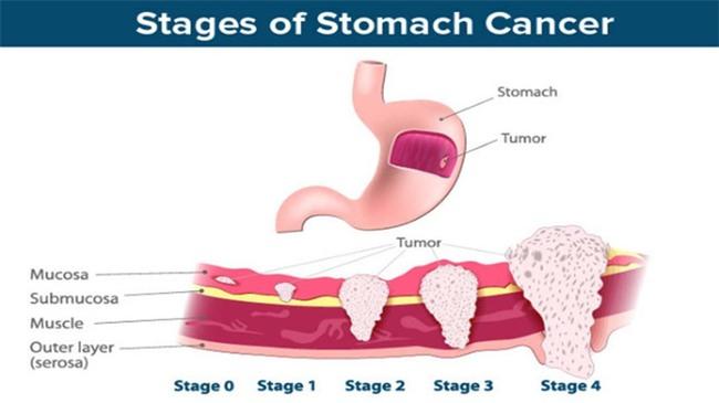 4 nhóm người có tỉ lệ bị ung thư dạ dày cao-1