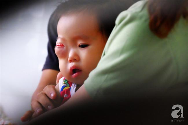 13 tháng trời, đôi vợ chồng nghèo Cà Mau gõ cửa 12 bệnh viện để tìm ra bệnh cho con - Ảnh 3.