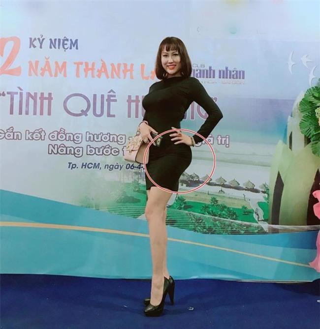 Sau ca đại phẫu toàn thân, Phi Thanh Vân xuất hiện với vòng 3 biến dạng - Ảnh 2.