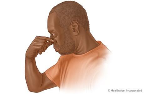 Chuyên gia chỉ rõ nên ngả phía trước hay ngửa đầu ra sau khi chảy máu cam-2