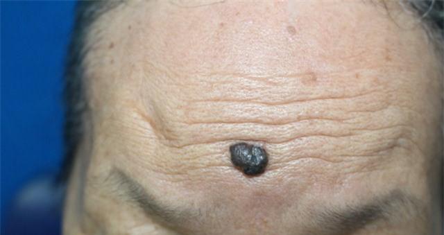 Cảnh báo gia tăng bệnh nhân ung thư da, nhiều người không biết mình mắc bệnh-4