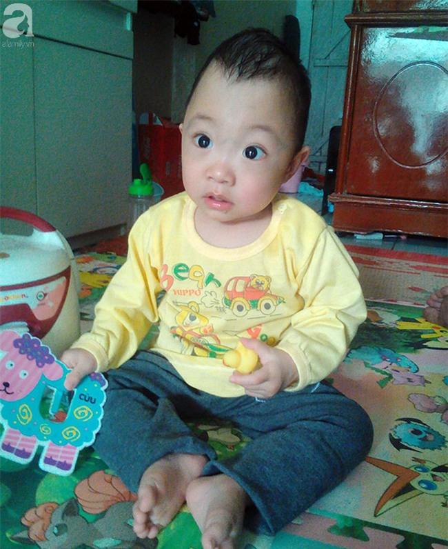 Bé trai 1 tuổi bị hẹp hộp sọ đã phẫu thuật thành công sau khi nhận được gần 50 triệu đồng từ các nhà hảo tâm - Ảnh 1.