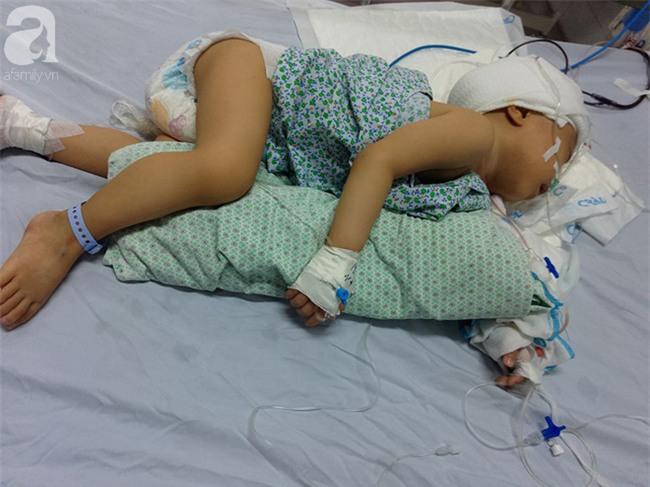 Bé trai 1 tuổi bị hẹp hộp sọ đã phẫu thuật thành công sau khi nhận được gần 50 triệu đồng từ các nhà hảo tâm - Ảnh 3.