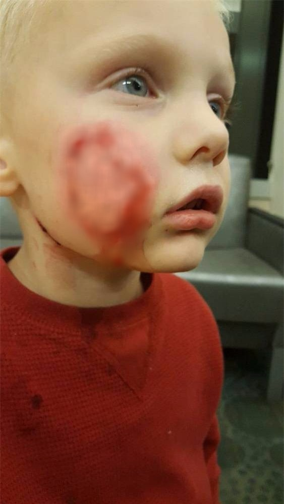 Bức ảnh mà các bậc phụ huynh nên lưu tâm chụp bé trai bị biến dạng khuôn mặt vì 2 con chó tấn công - Ảnh 4.