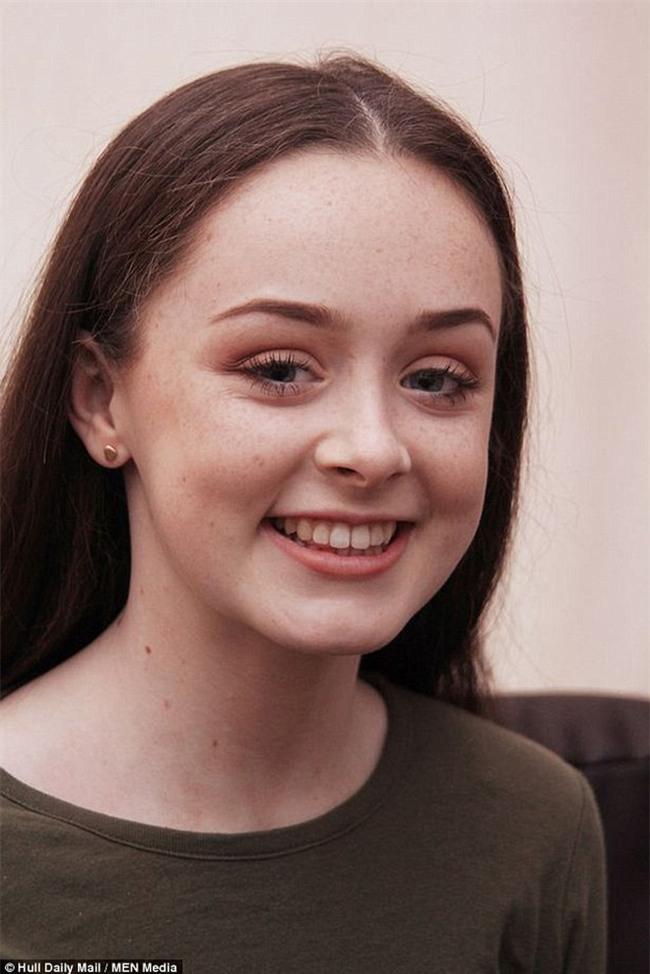 Cô gái 15 tuổi suýt chết vì bệnh nhiễm khuẩn, nguyên nhân được chẩn đoán là từ... niềng răng - Ảnh 1.