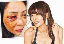 Video: Người mẫu Đài Loan bị người tình đại gia đánh nát mặt