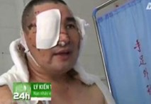Gặp người đàn ông bị tạt axit mù mắt vì tố cáo quan chức