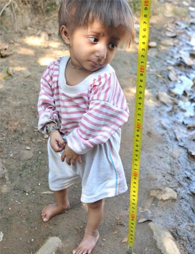 Dù đã tròn 5 tuổi nhưng bé K'Rể chỉ cao 50 cm, nặng khoảng 3 kg. Ảnh: Trí Tín.