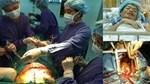 """Các bác sĩ Mỹ hồi sinh"""" thành công trái tim người đã chết, mở ra đột phá mới trong việc cấy ghép nội tạng-3"""