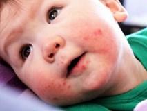 Bệnh tay chân miệng vào mùa, cha mẹ đừng nhầm lẫn để bệnh con thêm nặng
