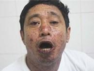 Một người nhập viện sau khi ăn cá nục kho