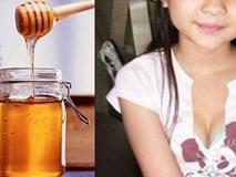 Bé gái 6 tuổi dậy thì sớm do uống mật ong thường xuyên