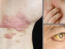 Đừng lơ là bỏ qua những dấu hiệu đầu tiên của bệnh gan!