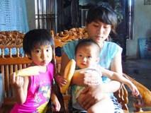 Người mẹ trẻ một nách 4 con vẫn bị chồng bạo hành tàn nhẫn đến mức nhập viện