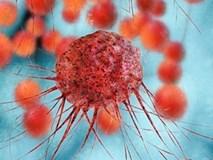 Điều trị ung thư bằng tế bào miễn dịch của người khác