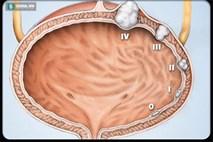 Ung thư khó phát hiện, nhưng có thể nhận ra bệnh ung thư này chỉ sau 1 lần đi tiểu