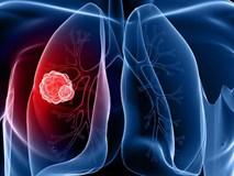 Những dấu hiệu cảnh báo bệnh ung thư phổi