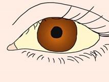 Một dấu hiệu nhỏ trong mắt cảnh báo bạn phải đi kiểm tra gan ngay