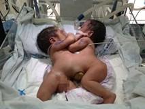 Bố của 2 bé sơ sinh dính liền: 'Tôi run bắn người khi thấy hai con bị dính ngực, bụng'
