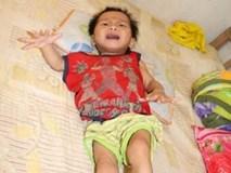 Rơi nước mắt trước hoàn cảnh bé 2 tuổi mang nhiều căn bệnh quái ác