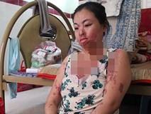 """""""Người mẹ ma"""" ở TP HCM: 'Ước gì tôi biết vì sao mình bị tạt axit'"""
