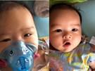 Con trai 5 tháng tuổi suýt chết vì một nụ hôn và lời cảnh báo của bà mẹ dược sĩ