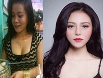 4 thủ thuật thẩm mỹ nhiều phụ nữ Việt rắp tâm thực hiện