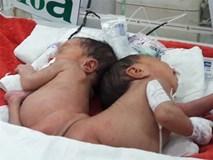Sản phụ 18 tuổi hạ sinh hai bé gái song sinh dính liền mông, không có hậu môn