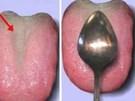 Cách phát hiện nội tạng có đang bị nhiễm độc hay không chỉ bằng 1 chiếc thìa