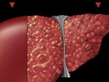 4 loại thực phẩm chắc chắn gây ung thư gan chuyên gia khuyên bạn tránh xa