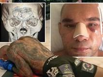 Võ sĩ MMA bị đá vỡ sọ thoát khỏi lưỡi hái tử thần