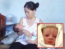 Mổ đẻ tiếp tục gặp sự cố làm tổn thương trẻ sơ sinh, sản phụ lo lắng