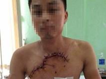 Hy hữu: Nam thanh niên ngã xe máy lòi tim phổi ra ngoài