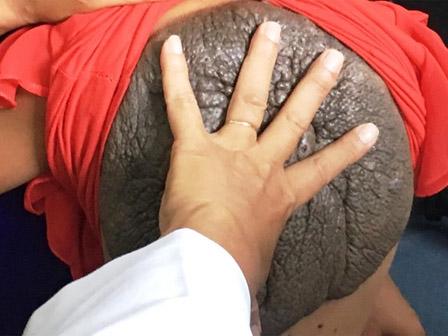 Bé gái mang bướu 'mai rùa' ở lưng chưa từng thấy ở Việt Nam