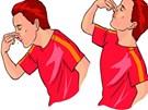 Ngửa đầu ra sau khi bị chảy máu cam: Quan niệm sai lầm tai hại