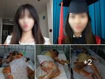 Xót thương cô gái xinh đẹp bị bỏng toàn thân, khuôn mặt biến dạng sau tai nạn