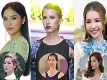 Mỹ nhân Việt gây 'thất vọng tràn trề' khi xuất hiện với gương mặt sưng phồng