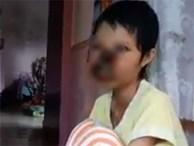 Cô gái ở Đồng Nai mắc bệnh lạ, khuôn mặt bị ăn mòn cả hàm trên và mũi