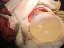 Kinh hoàng nang sán dây chiếm nửa não cô bé Ấn Độ