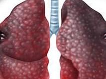 Nếu không muốn bị ung thư phổi, hãy làm những việc này để bảo vệ phổi