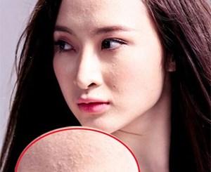 Loạt ảnh cận mặt rõ đến từng lỗ chân lông, tố cáo tình trạng da trái ngược của sao nữ