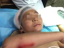 Đang trên đường đi học, bé trai 12 tuổi bị đàn khỉ hoang xúm vào tấn công trọng thương
