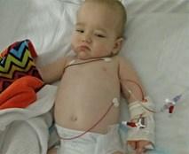 Bé trai 10 tháng tuổi bất ngờ viêm màng não sau khi ngồi xe đẩy siêu thị