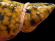 9 dấu hiệu cảnh báo gan đang gặp nguy hiểm bạn nên biết