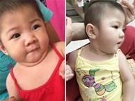 Hình ảnh mới của bé gái 14 tháng tuổi nặng 3,5kg sau hơn 3 tháng được mẹ nuôi chăm sóc